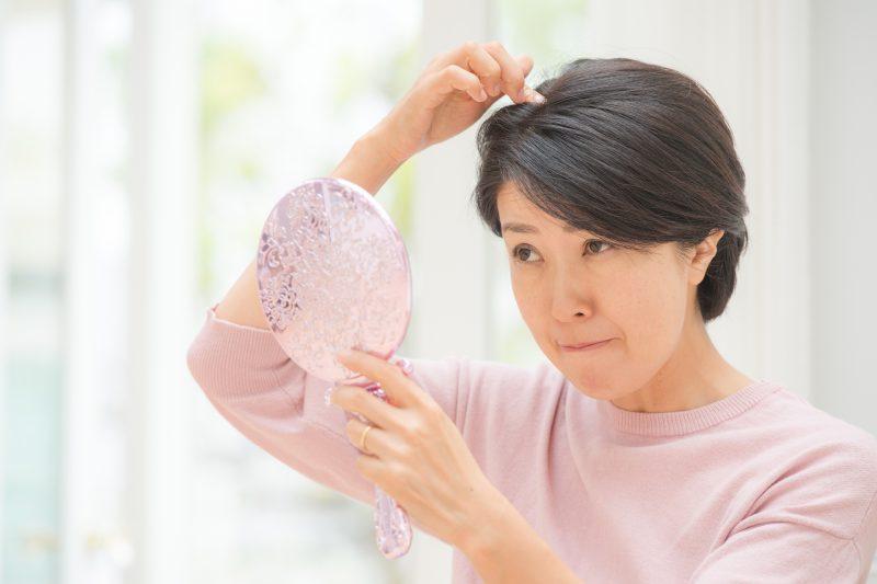 ウィッグ、育毛、増毛…薄毛対策のメリット・デメリットを徹底検証