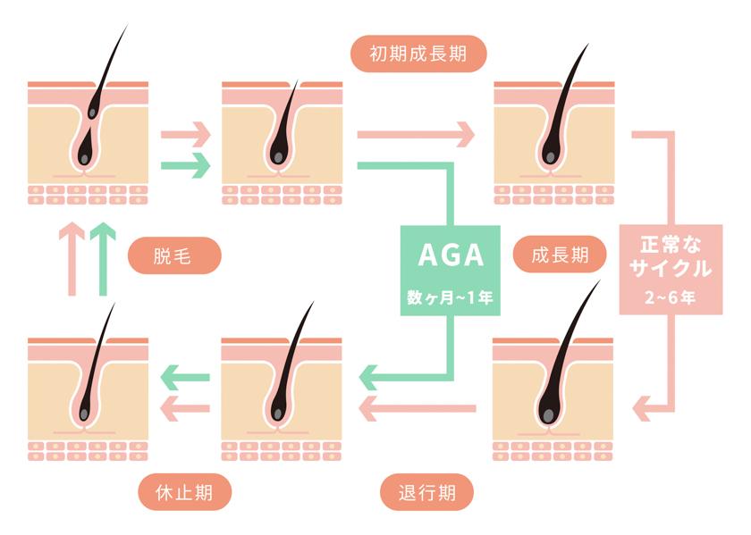薄毛の原因であるAGAとは?